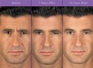 botox before and after man
