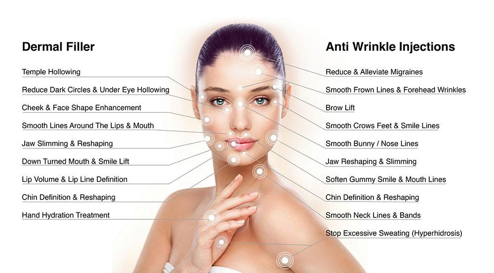 Botox versus fillers