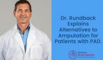 Dr. Rundback Explains Alternatives to Amputation for Patients with PAD.