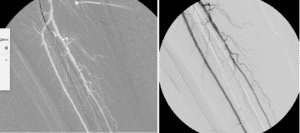 S/P CSI Atherectomy and Angioplasty of Peroneal Artery Stenoses