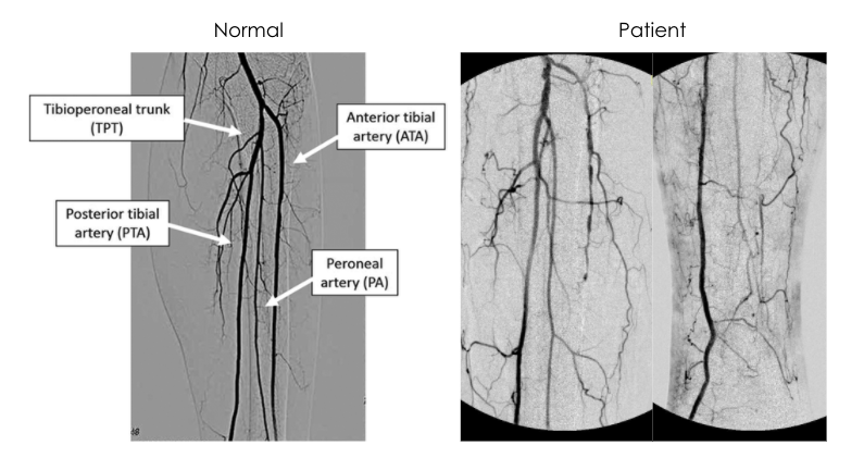 Occluded ATA and poor collateralization