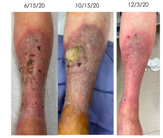 Wounds have progressively healed  Pain in leg significantly improved