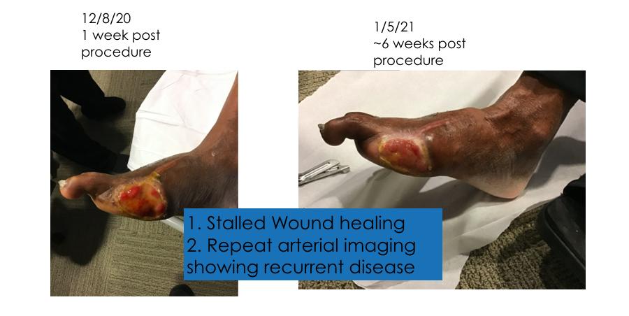 Clinical Image Progression