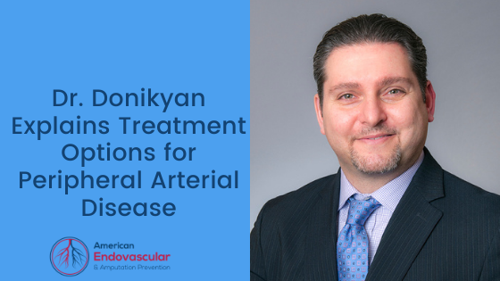 Treatment Options for Peripheral Arterial Disease
