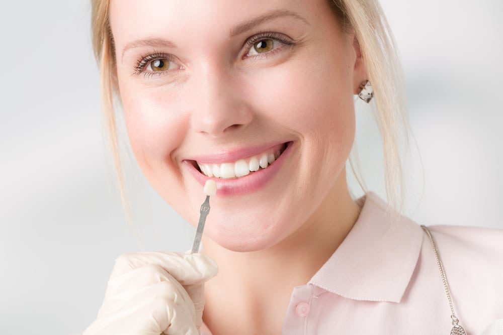 Female having Veneers and Laminates