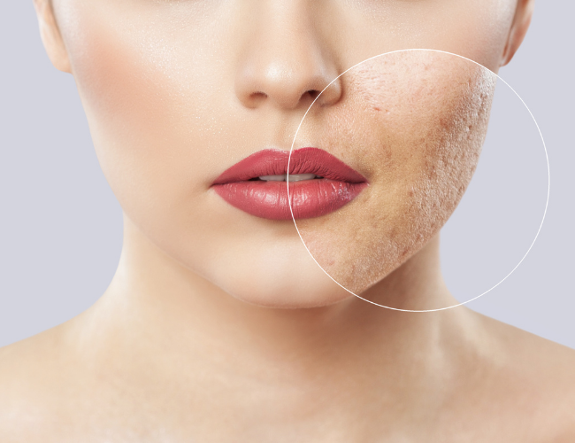 Maskne: Skin Issues With Our Frequent Use Of Masks