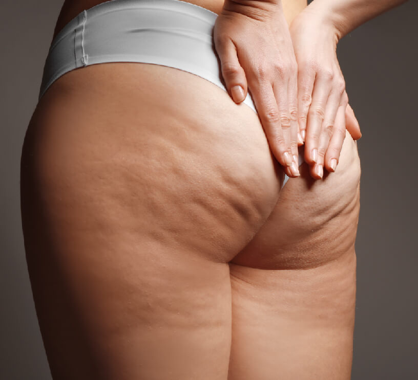 cellulite on butt