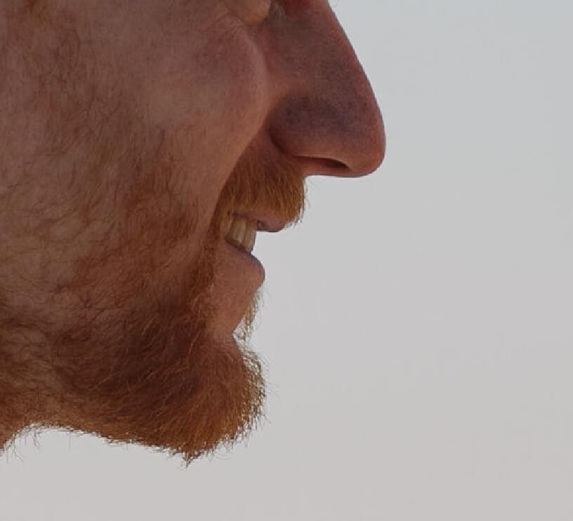 droopy nasal tip