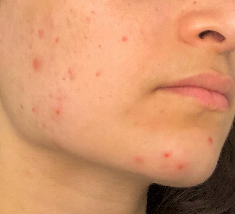 acne on female face