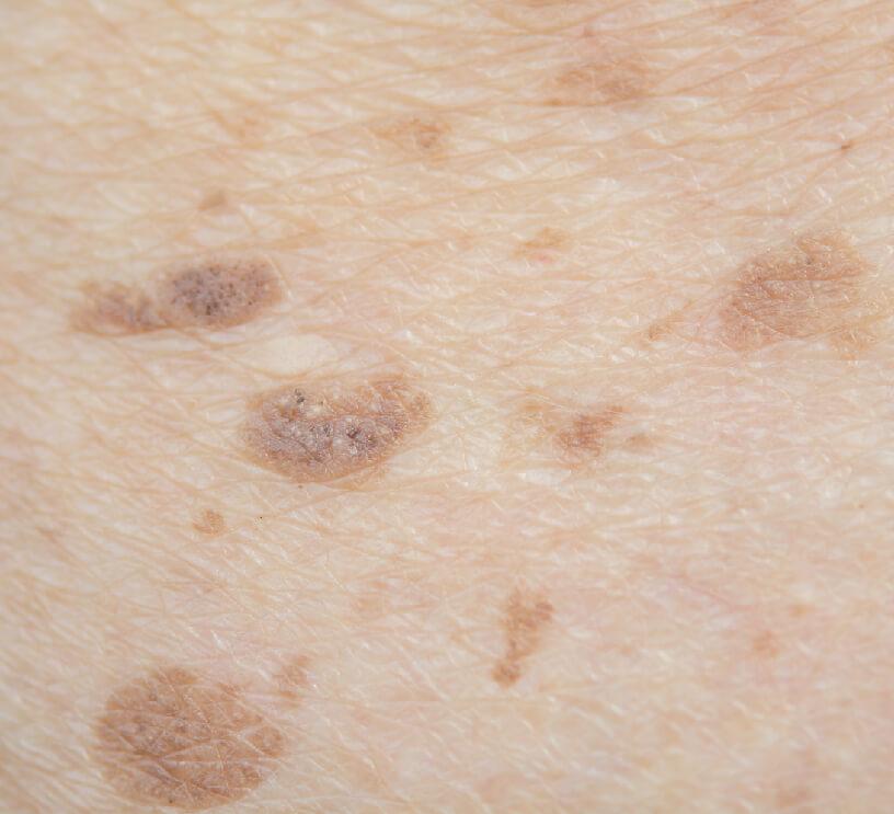 sun/age spots