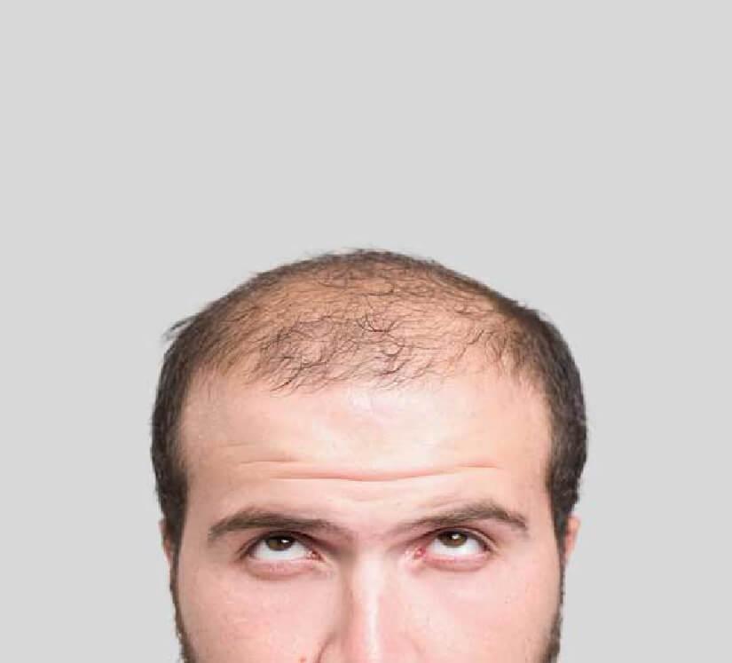 man with balding hair