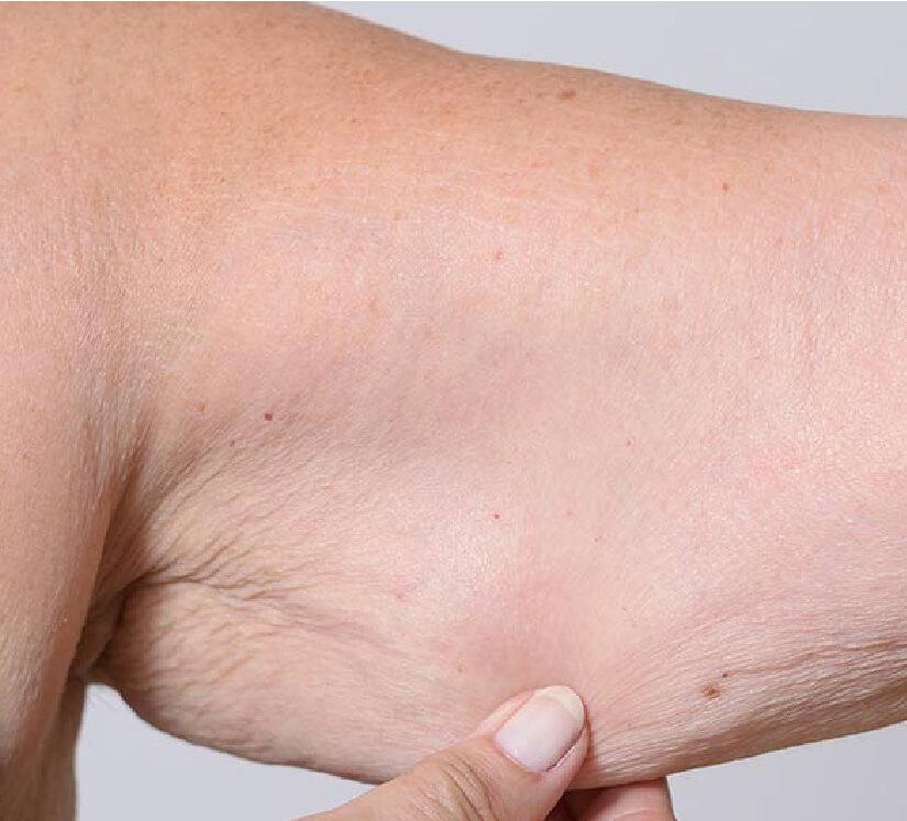 sagging upper arm skin