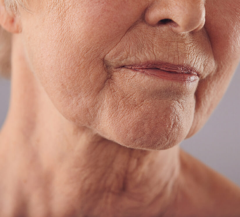 wrinkly skin on face