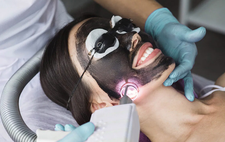Everything You Need to Know About a Laser Carbon Facial