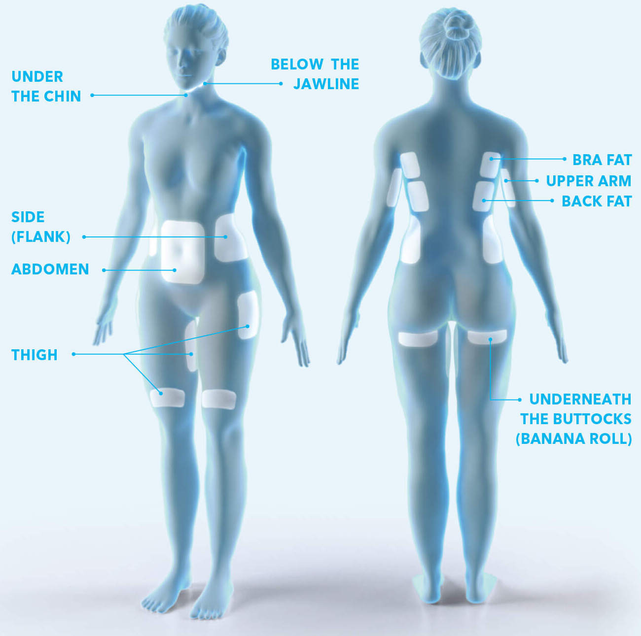 CoolSculpting treatment areas include under the chin, below the jawline, the abdomen, obliques, thighs, bra fat, upper arm, back fat, and underneath the buttock