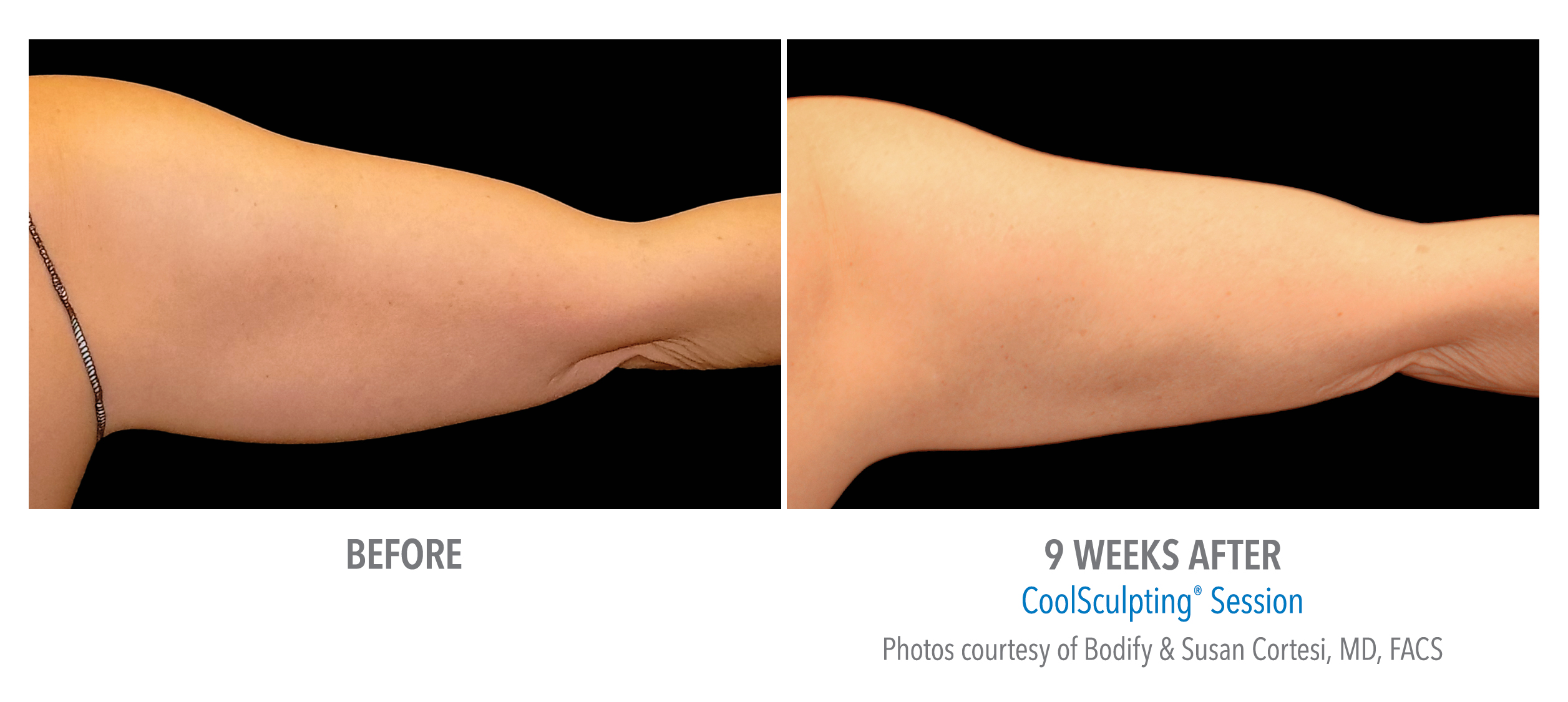 arm coolsculpting before after