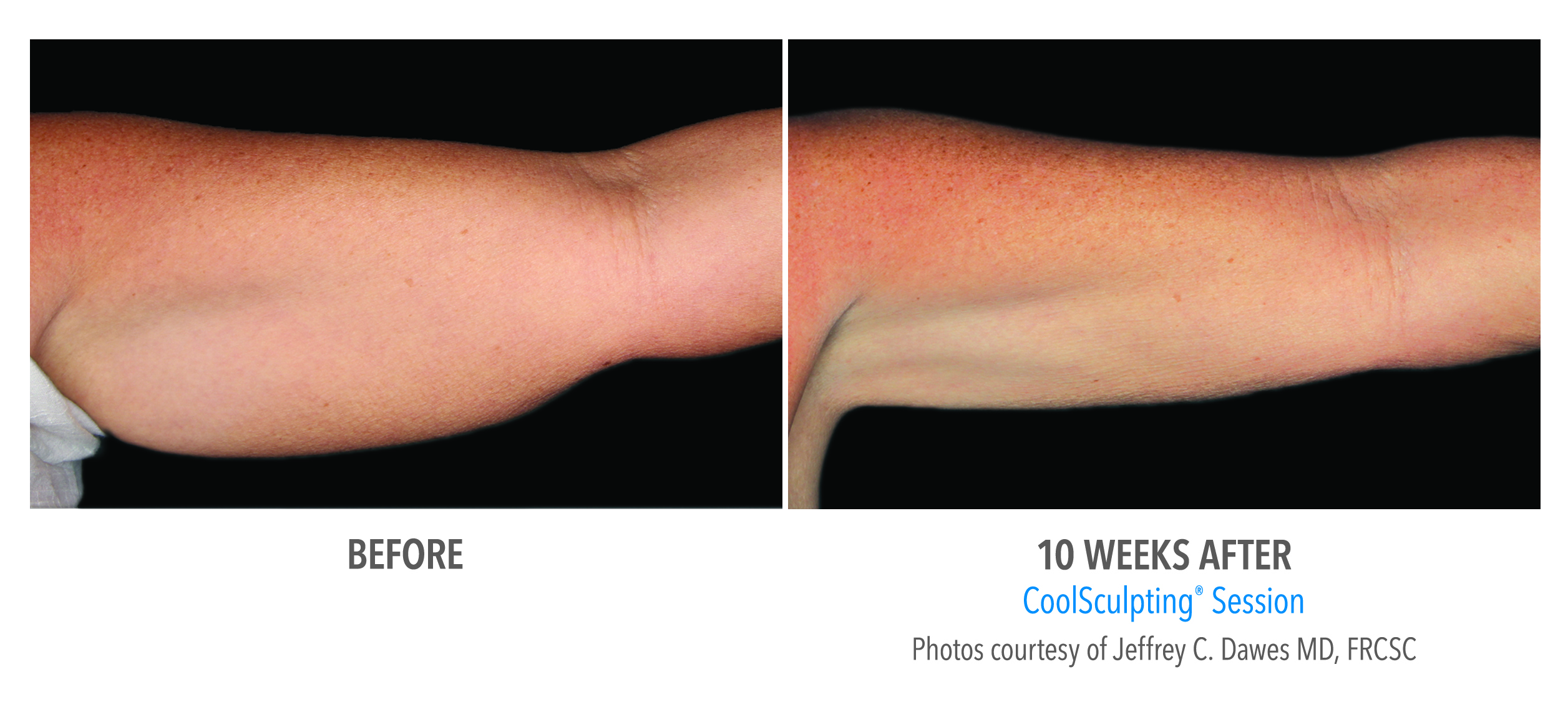 arm fat coolsculpting before after