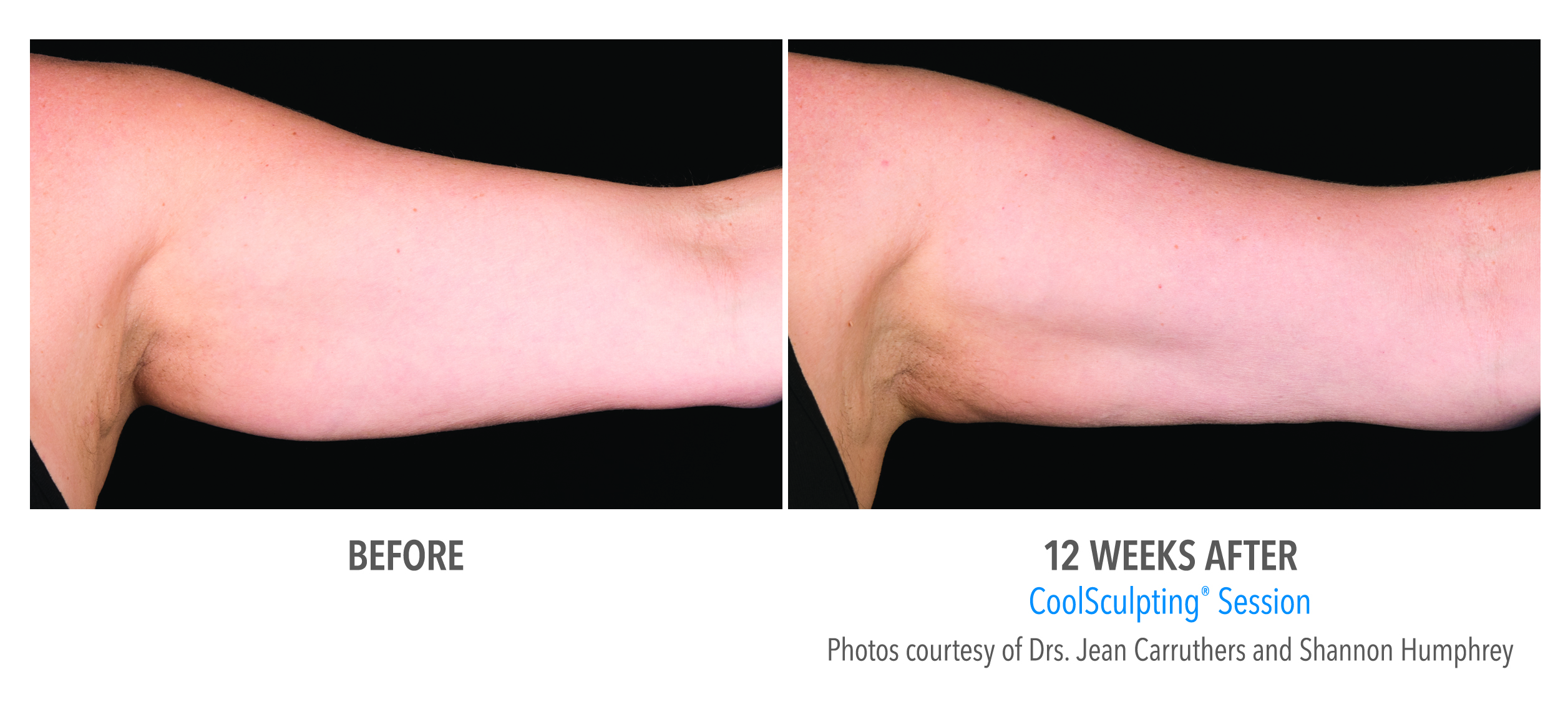 arm fat reduction before after