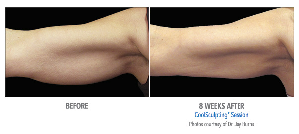 arm reshaping before after coolsculpting