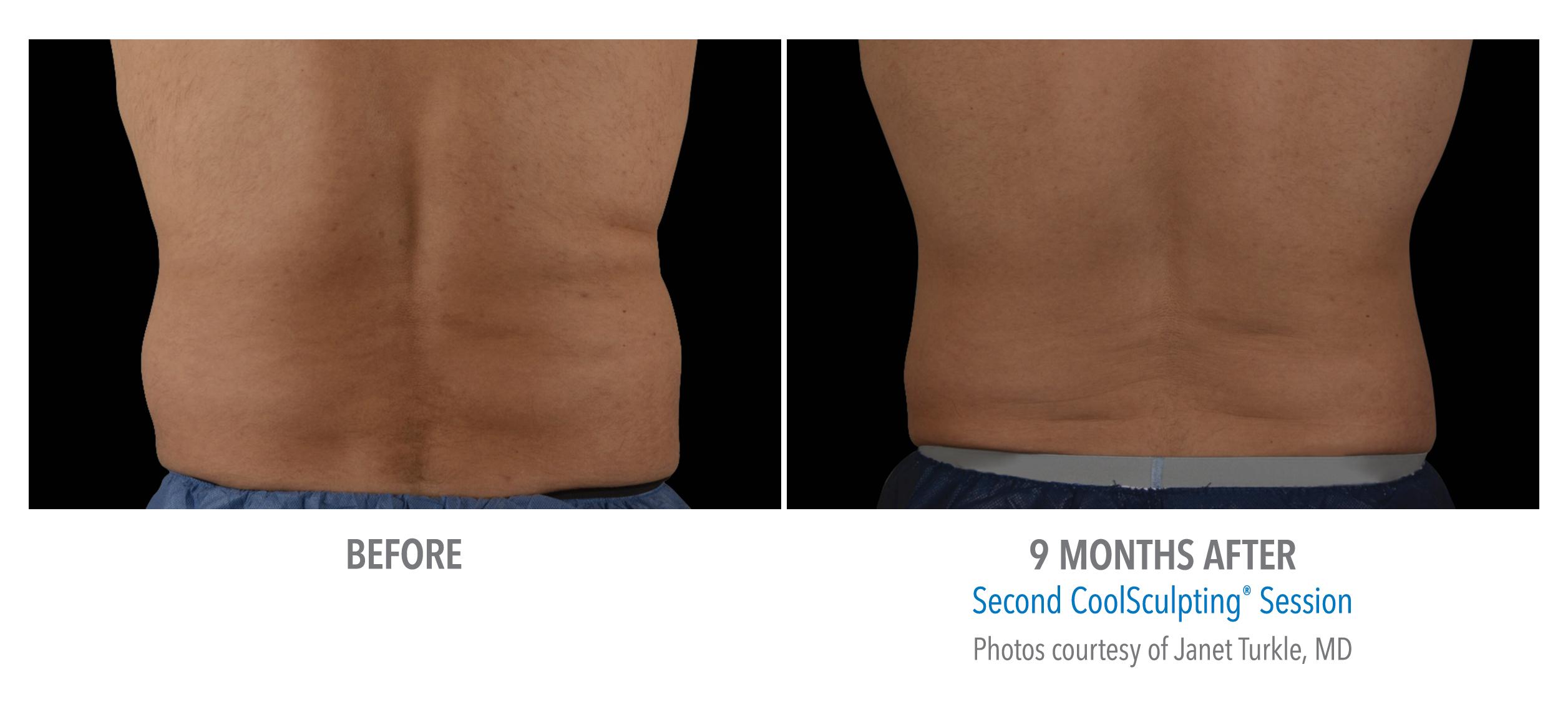 back fat coolsculpting before after