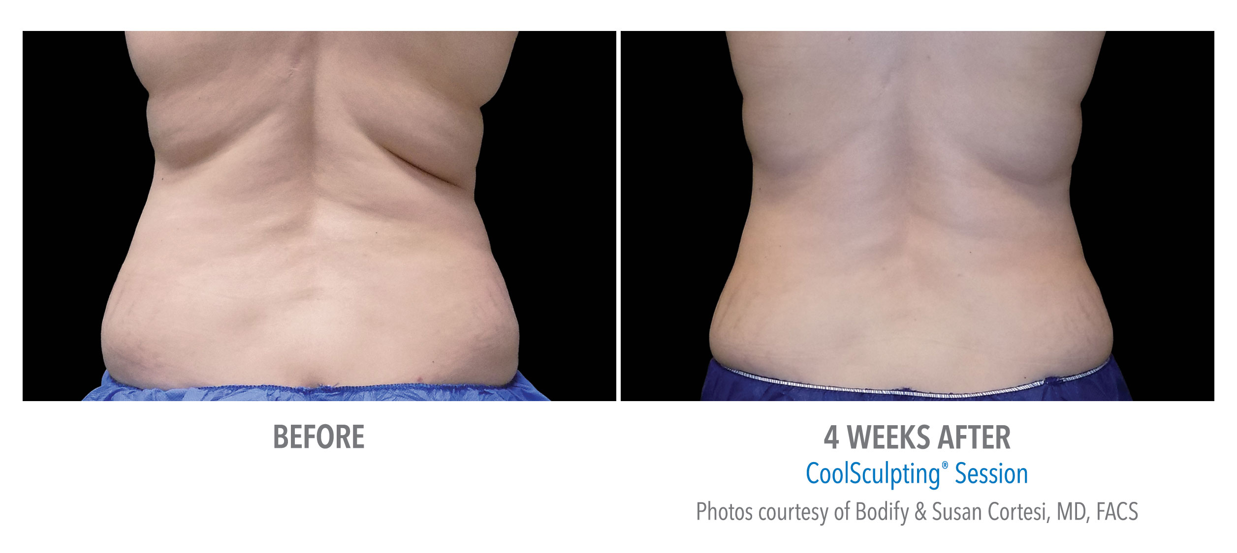 back fat coolsculpting before afters