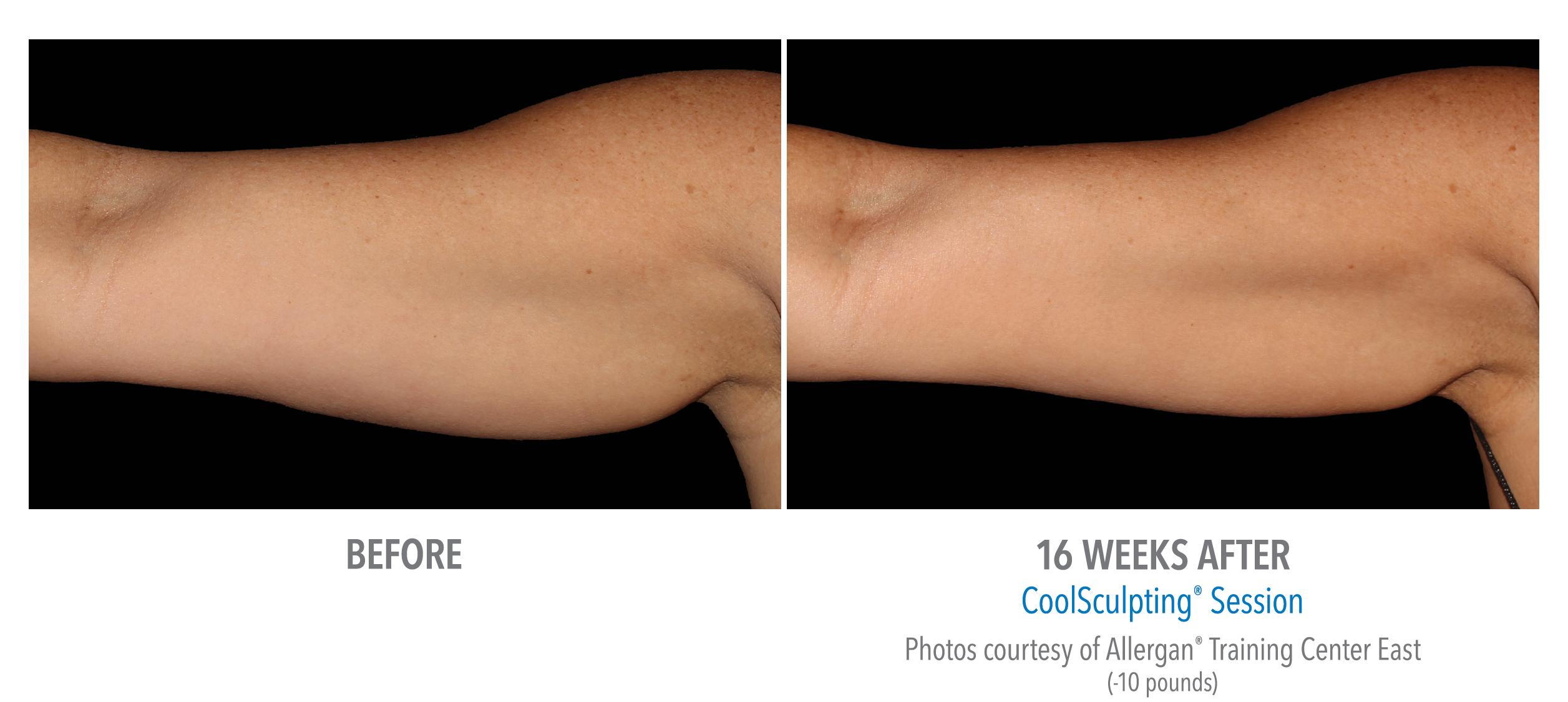 before after coolsculpting arms