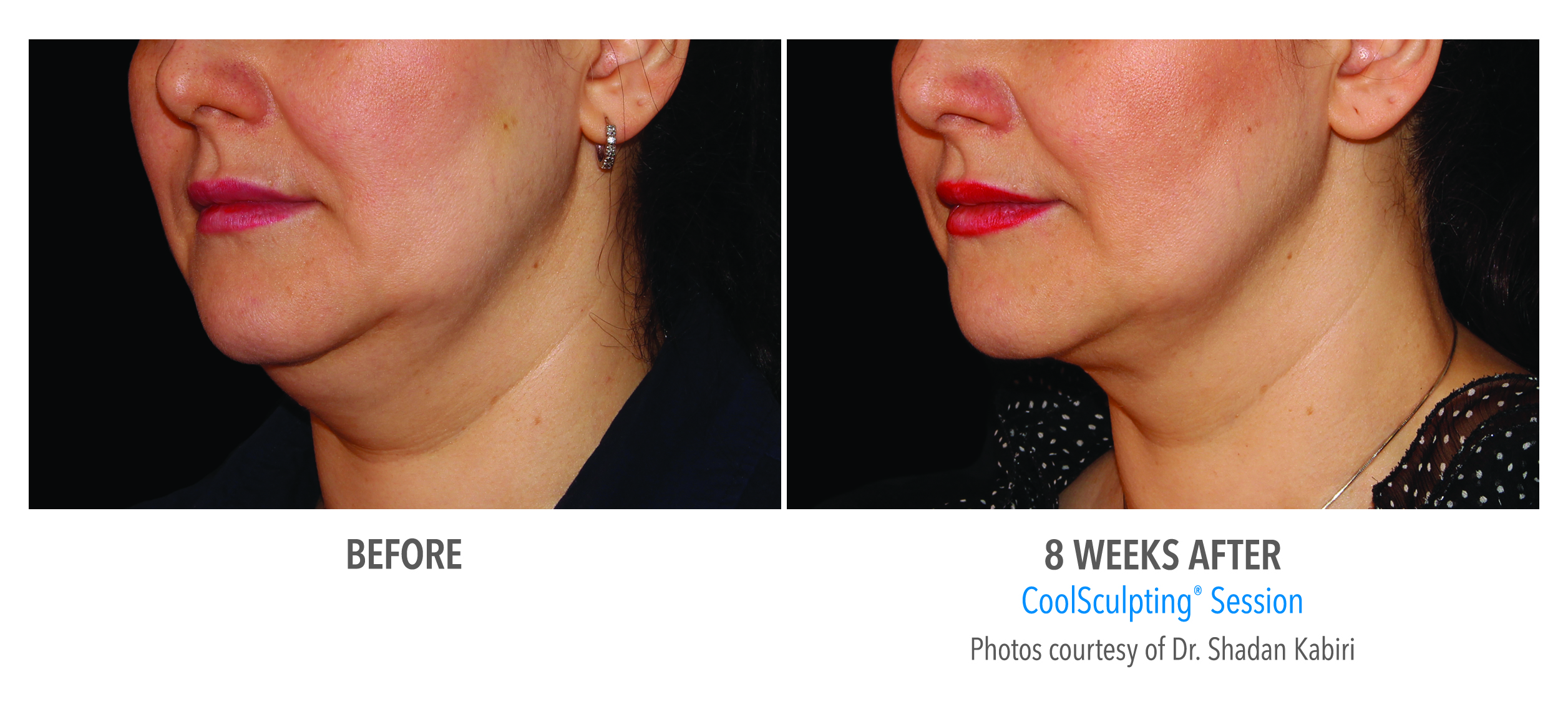 before after double chin coolsculpting