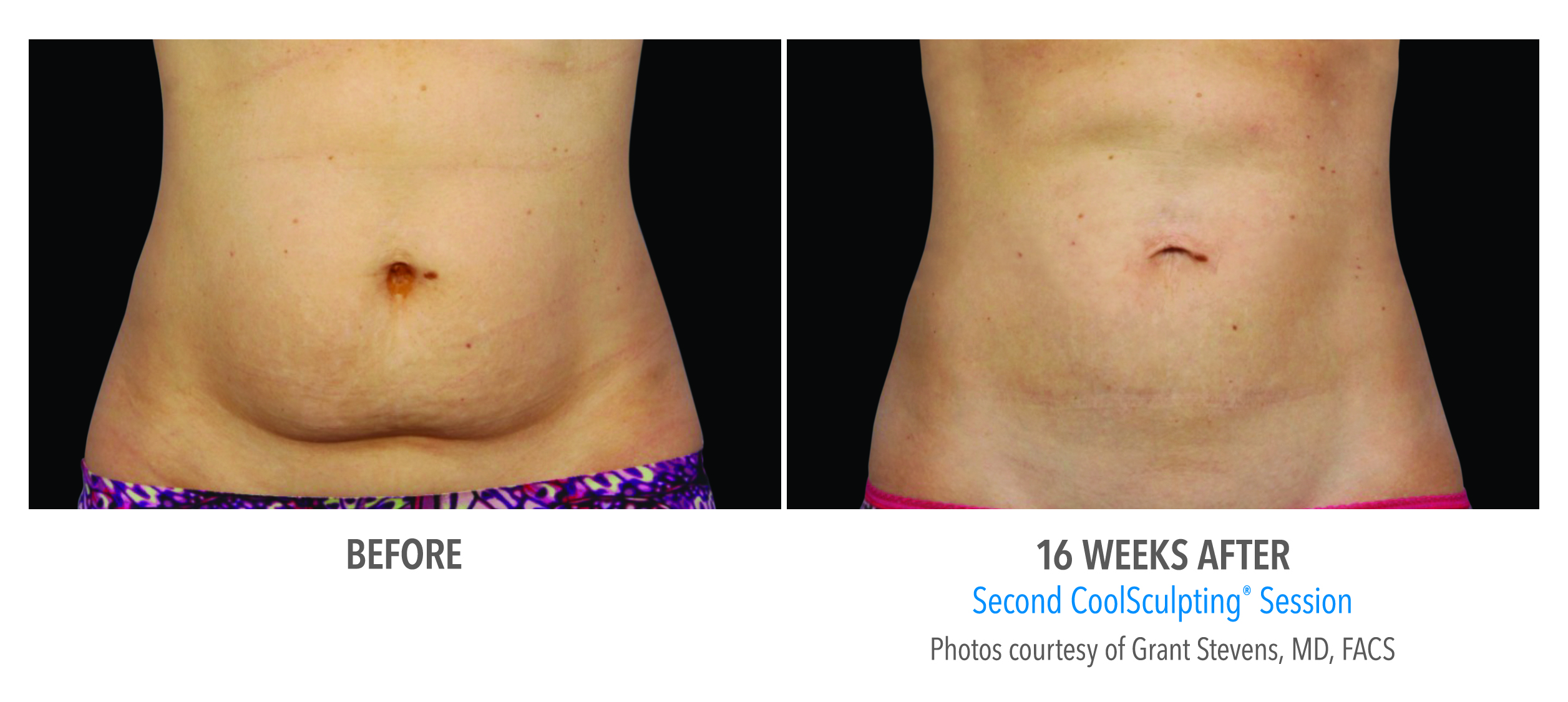 belly fat coolsculpting before after