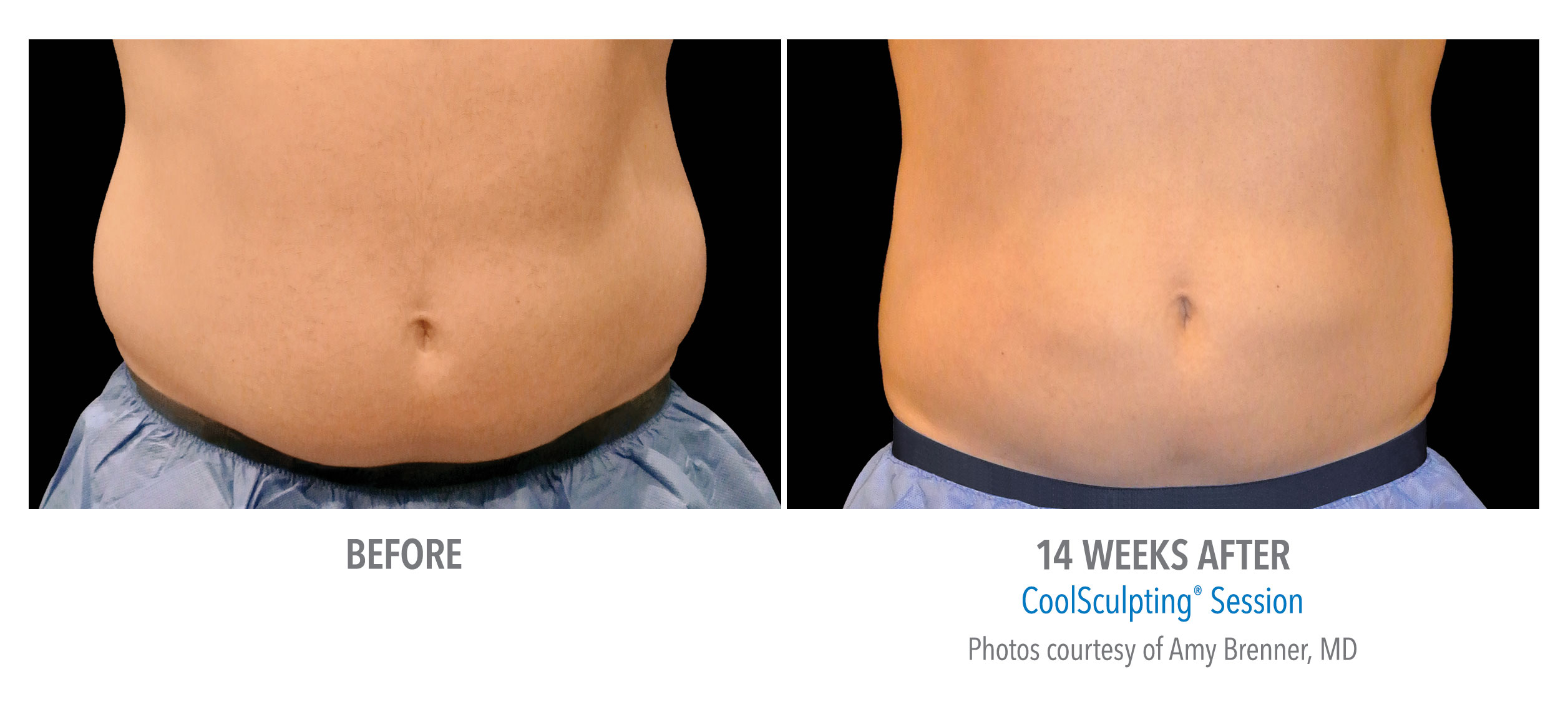body contouring coolsculpting