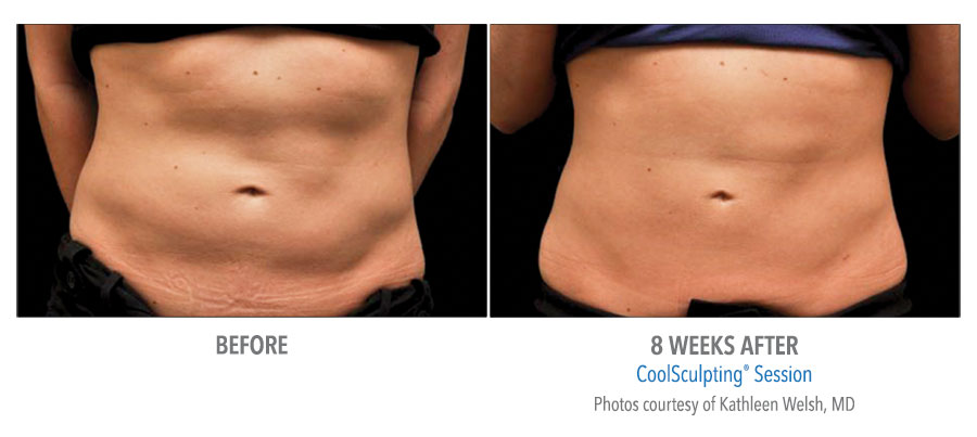 body contouring coolsculpting before after