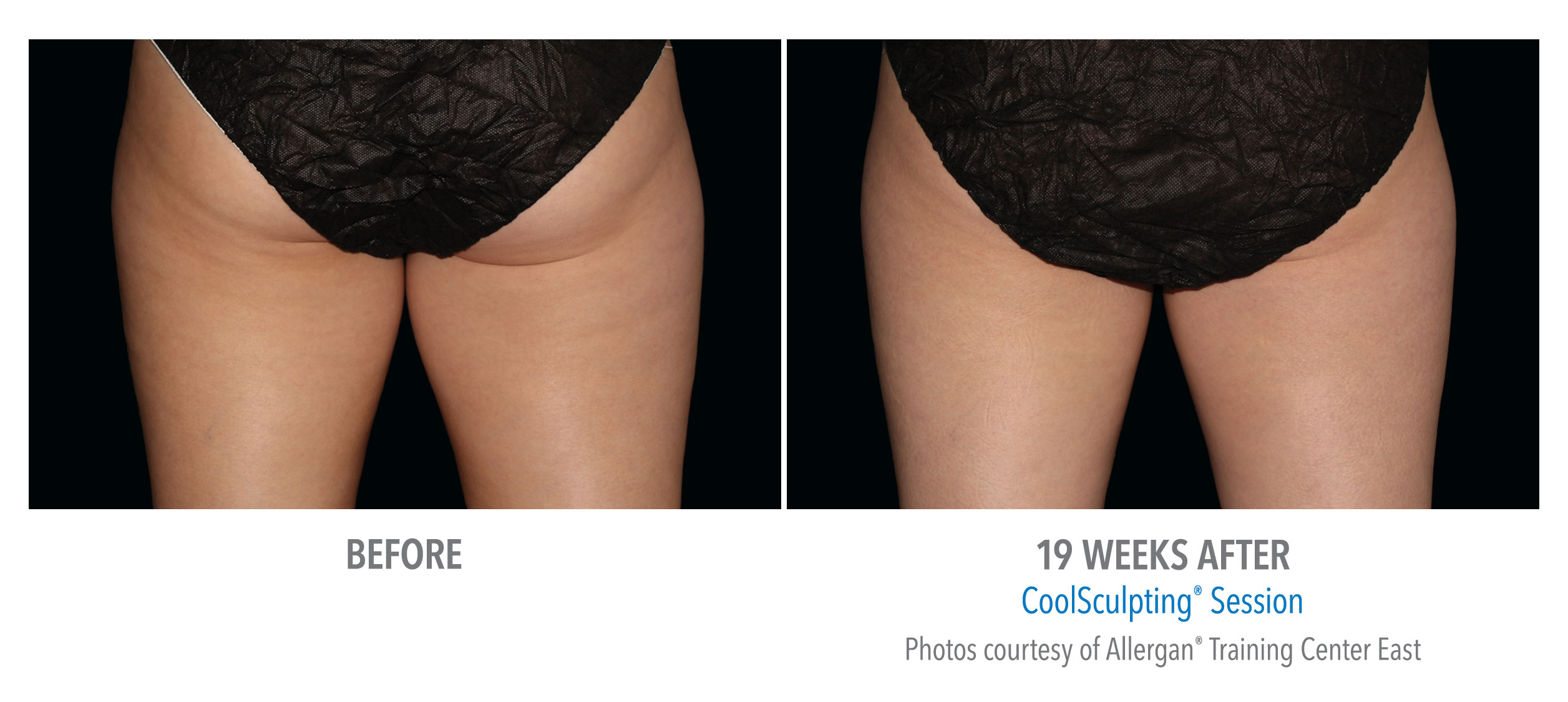 cellulite removal coolsculpting