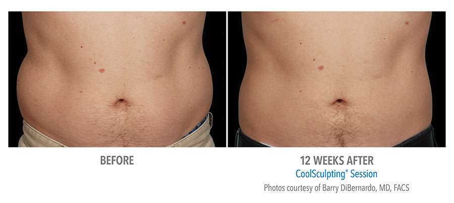coolsculpting abdomen before after