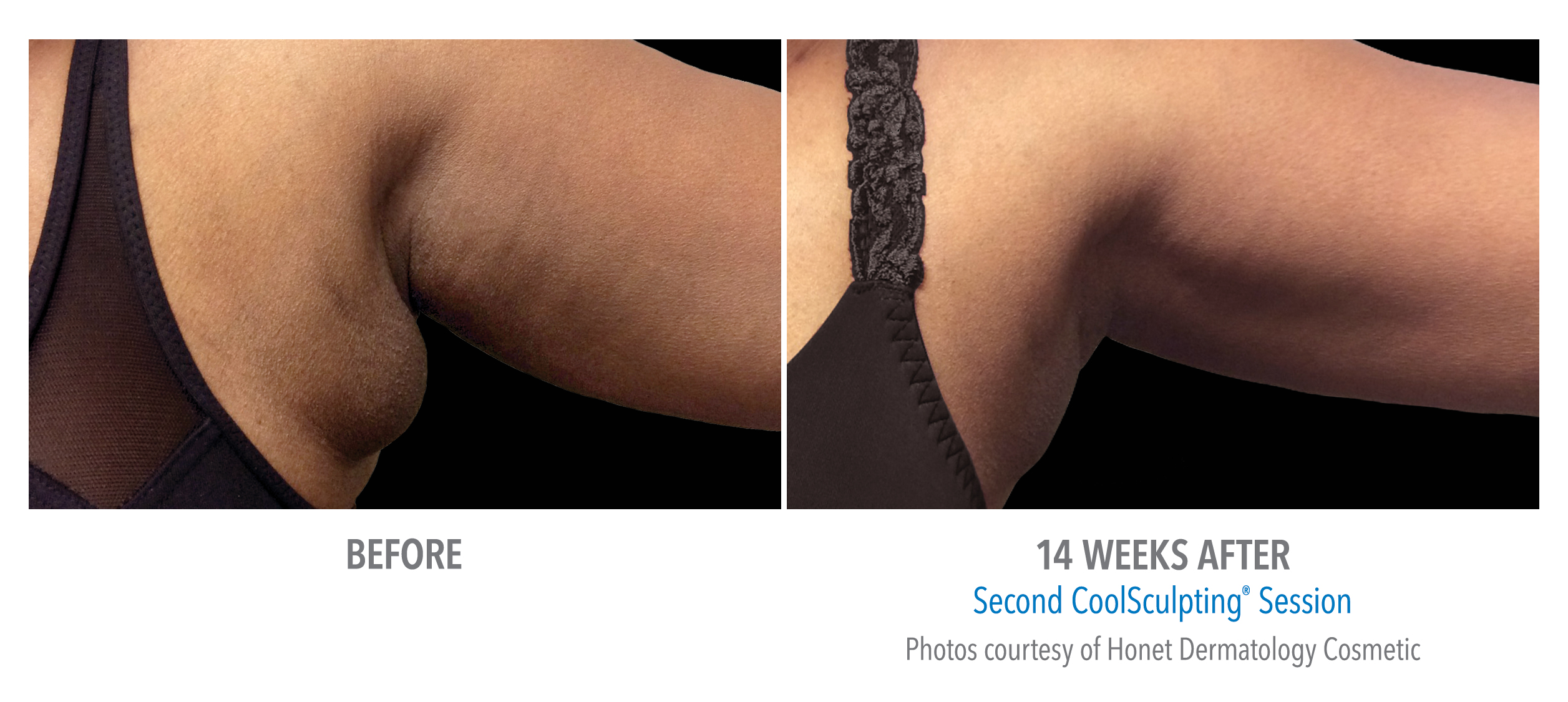 coolsculpting armpit fat reduction