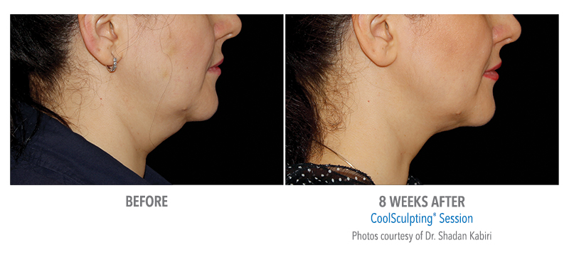 coolsculpting chin before after