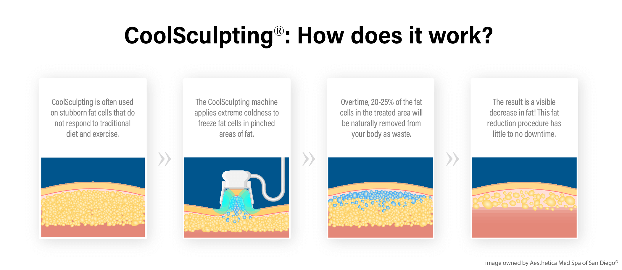 coolsculpting infograph mobile