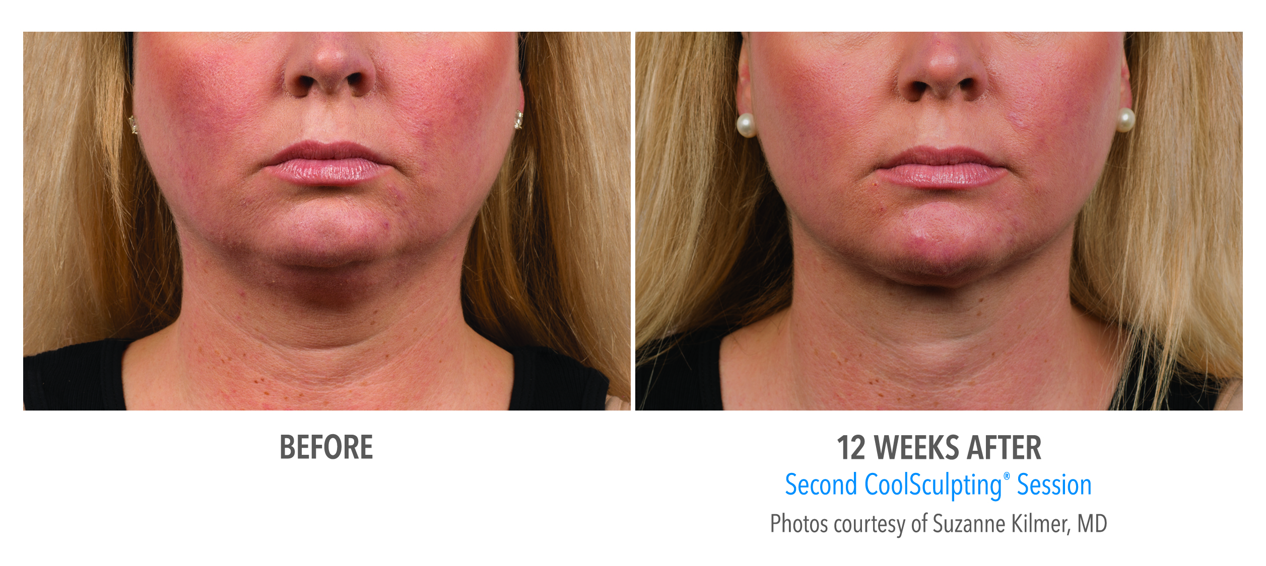 coolsculpting jaw before after