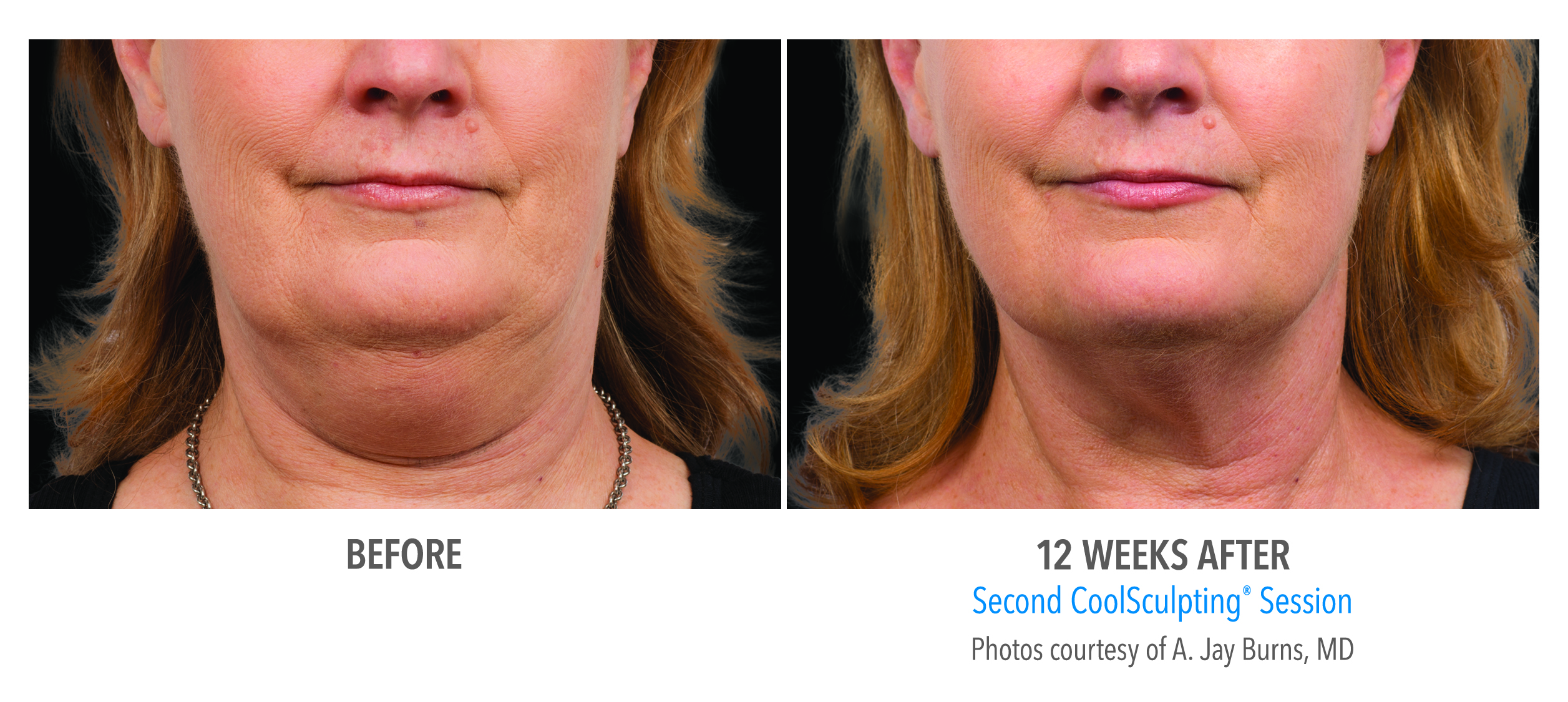 coolsculpting jawline before after
