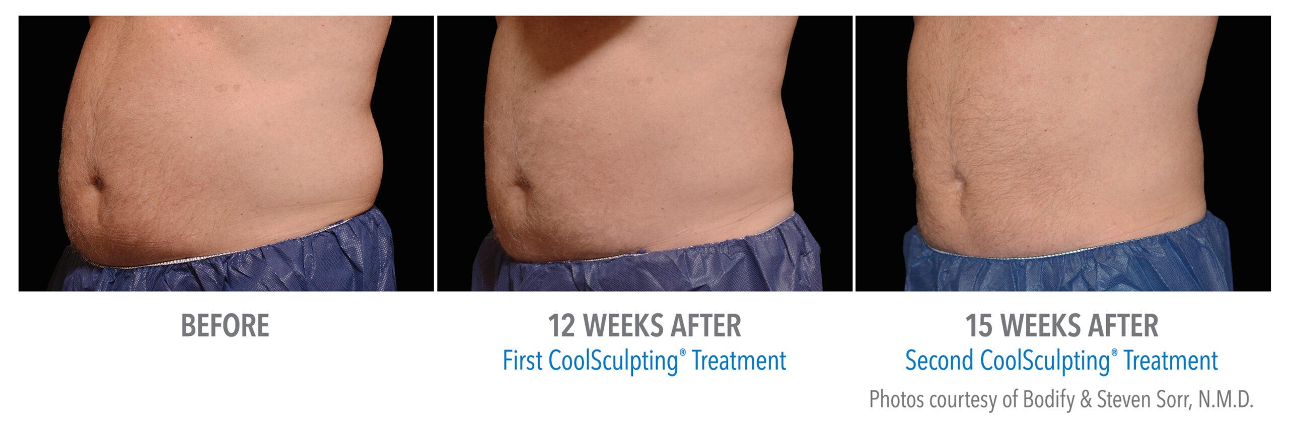 coolsculpting stomach san diego