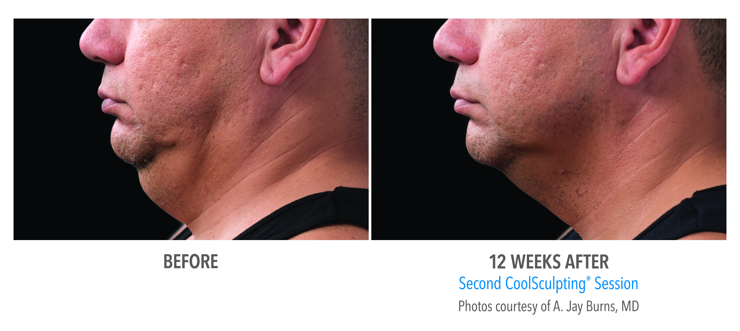 double chin coolsculpting