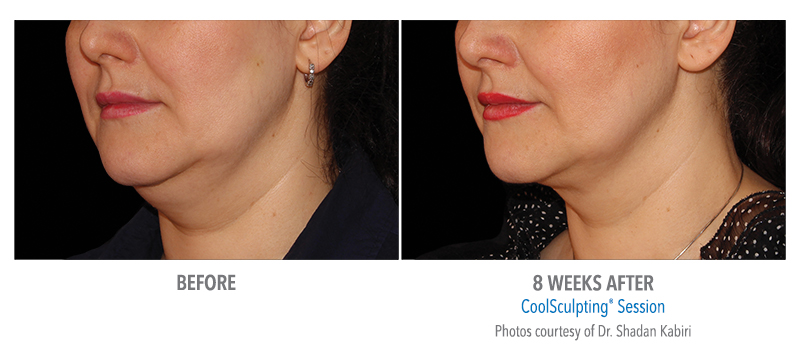 double chin reduction coolsculpting