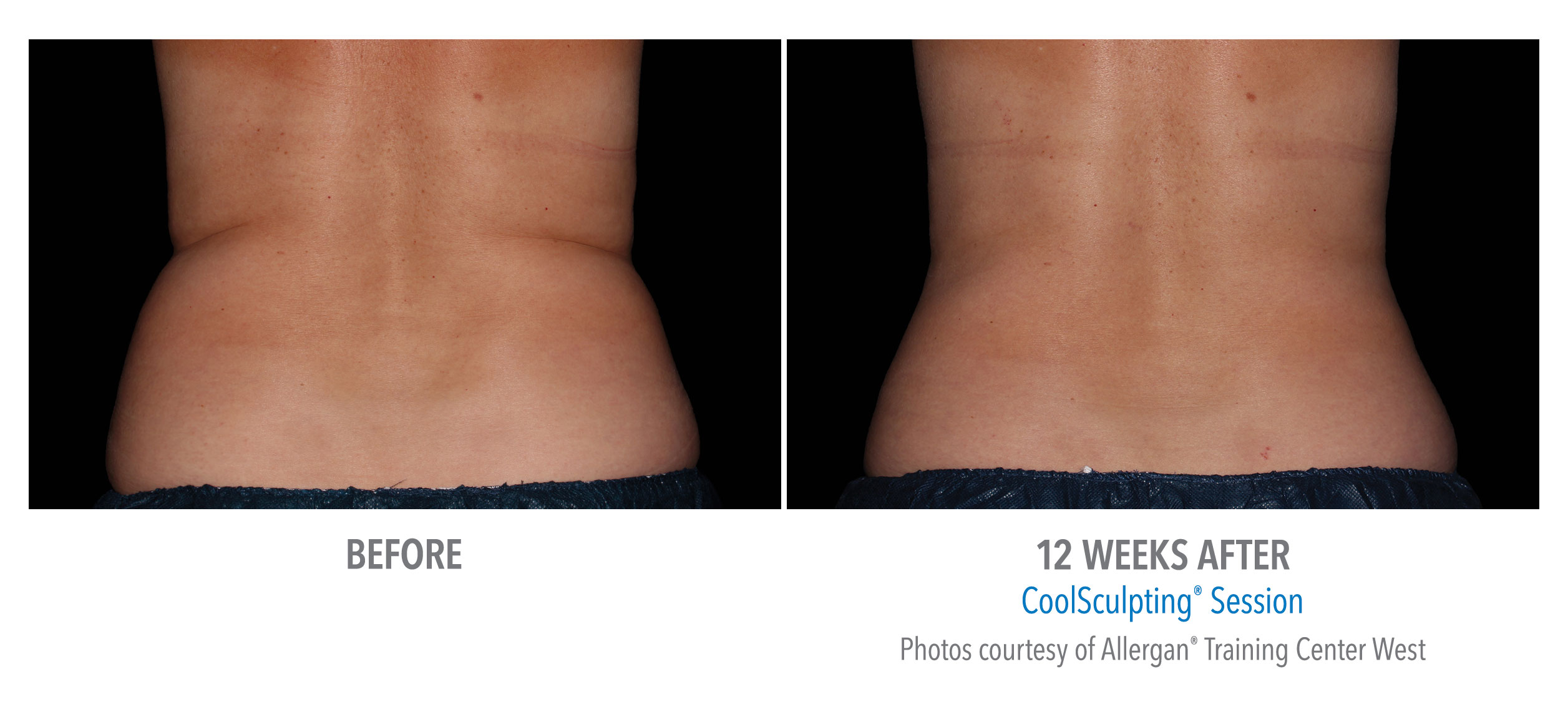 female flanks coolsculpting before after