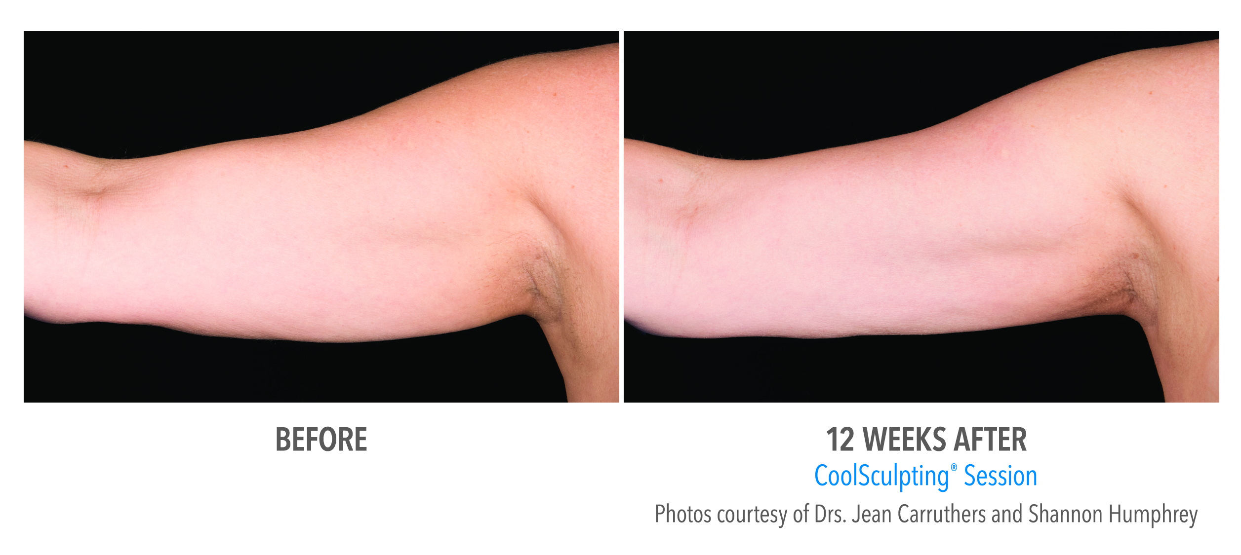 flabby arm correction before after