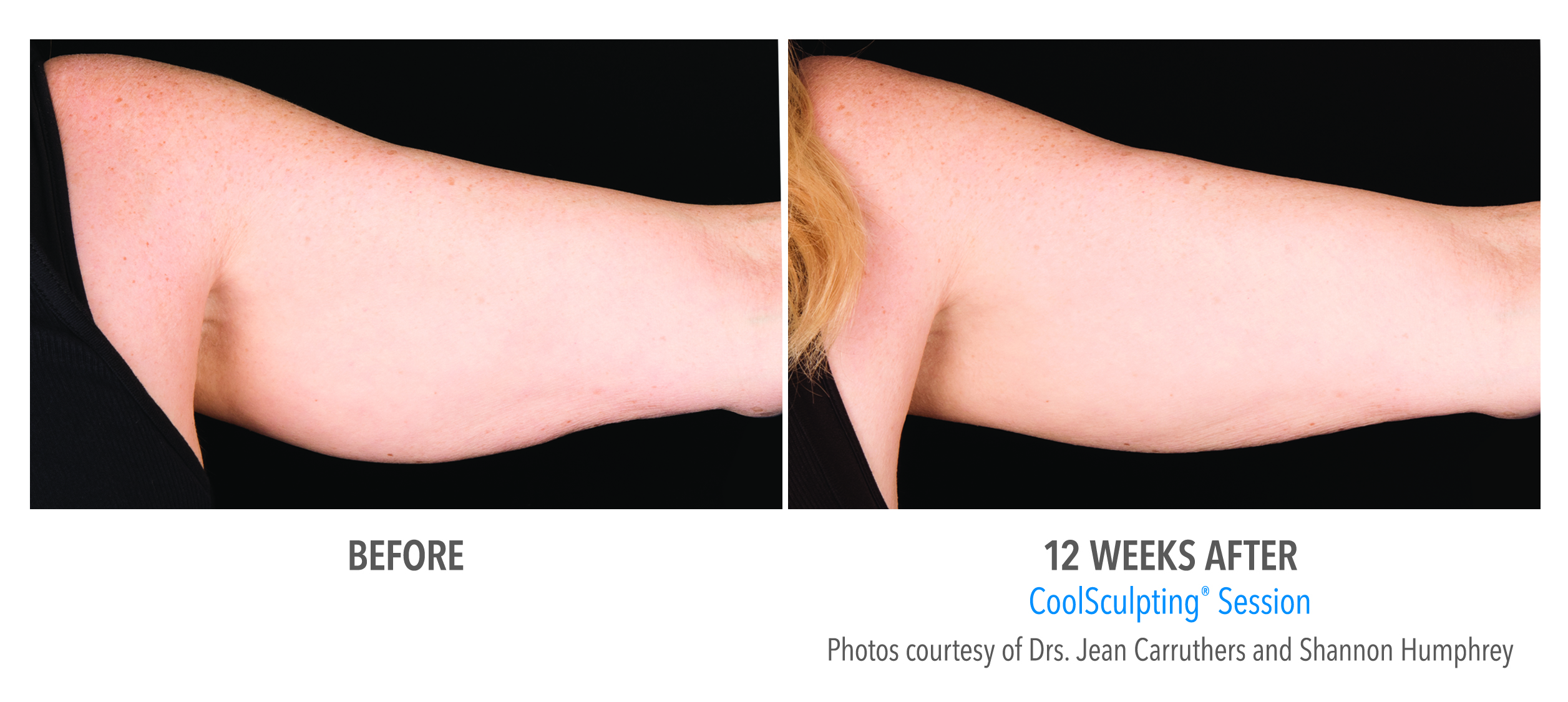 flabby arms coolsculpting before after
