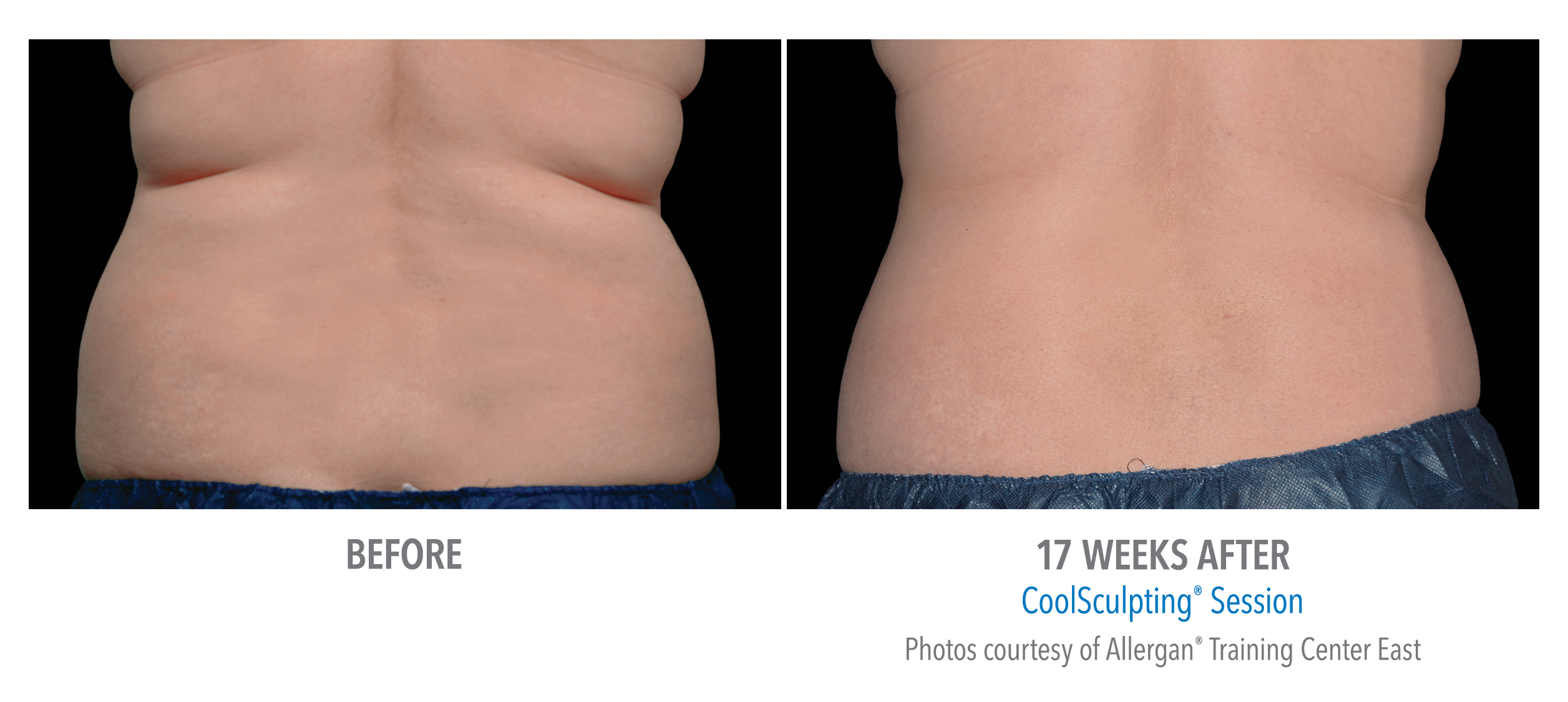 flank fat reduction