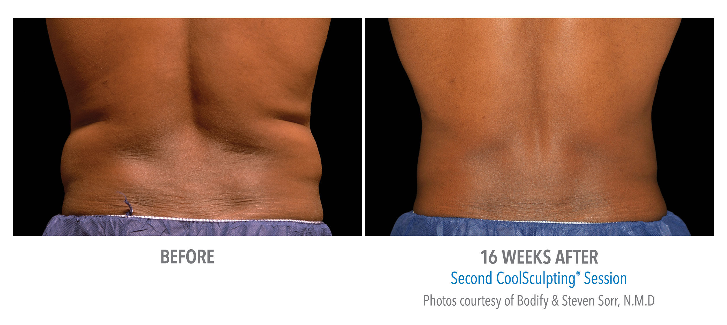 flank fat reduction before after