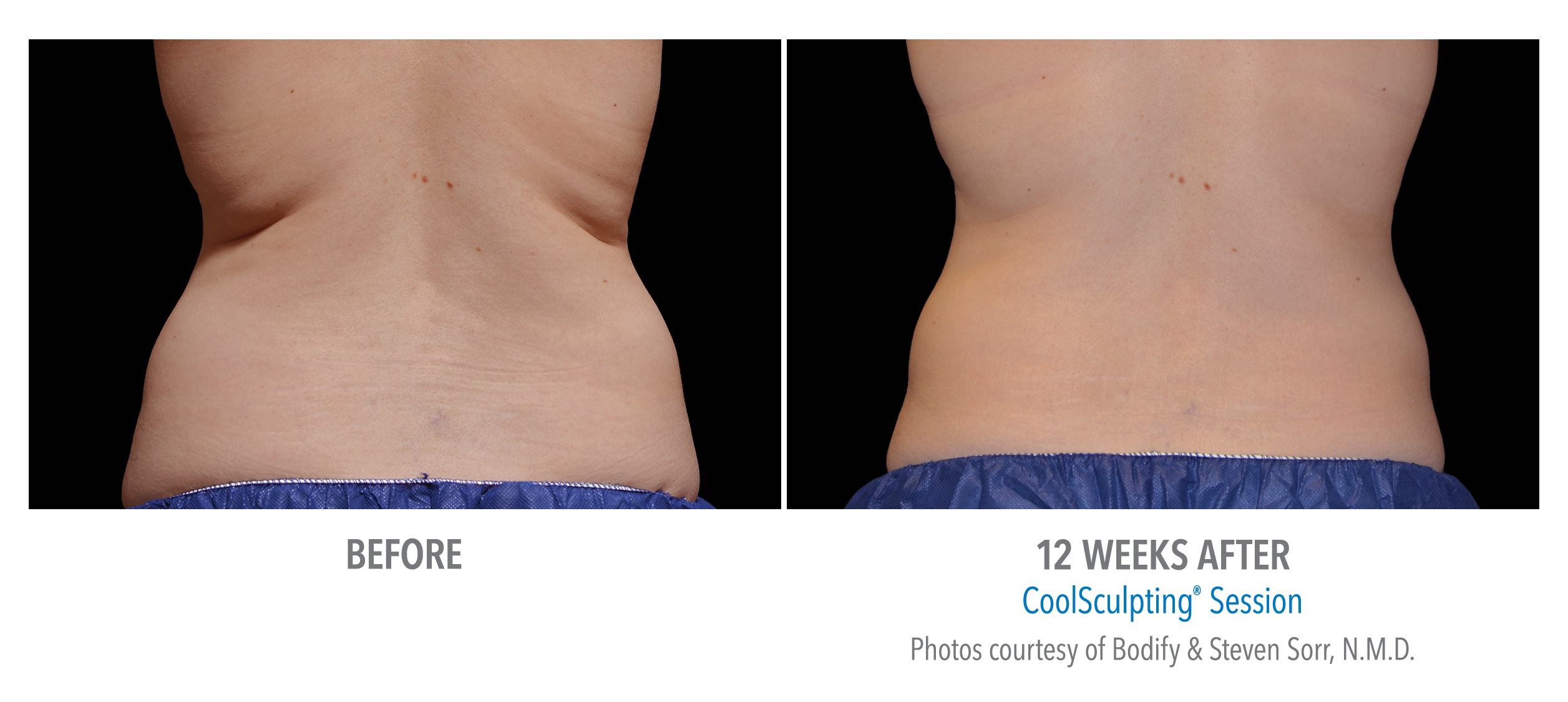 flank fat reduction with coolsculpting