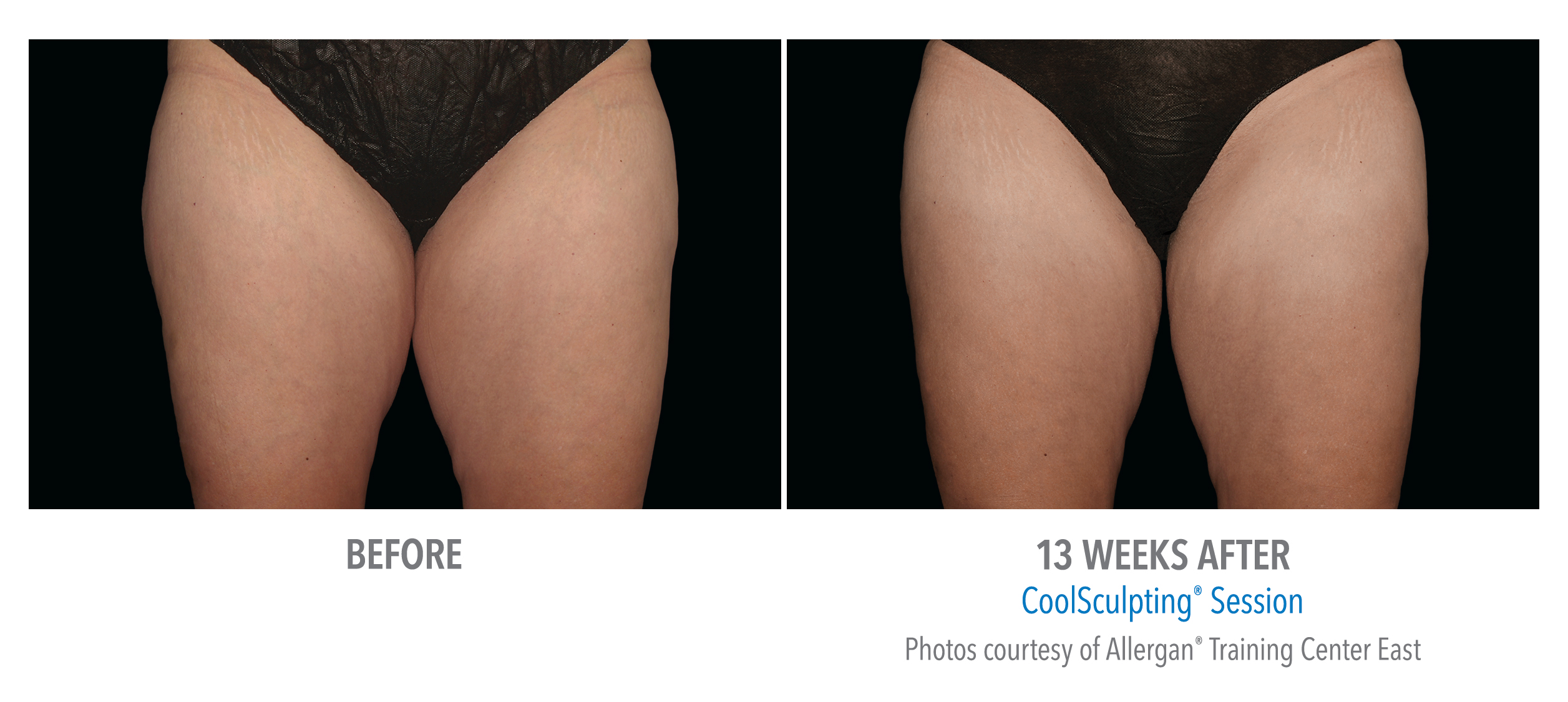 inner thigh coolsculpting before after