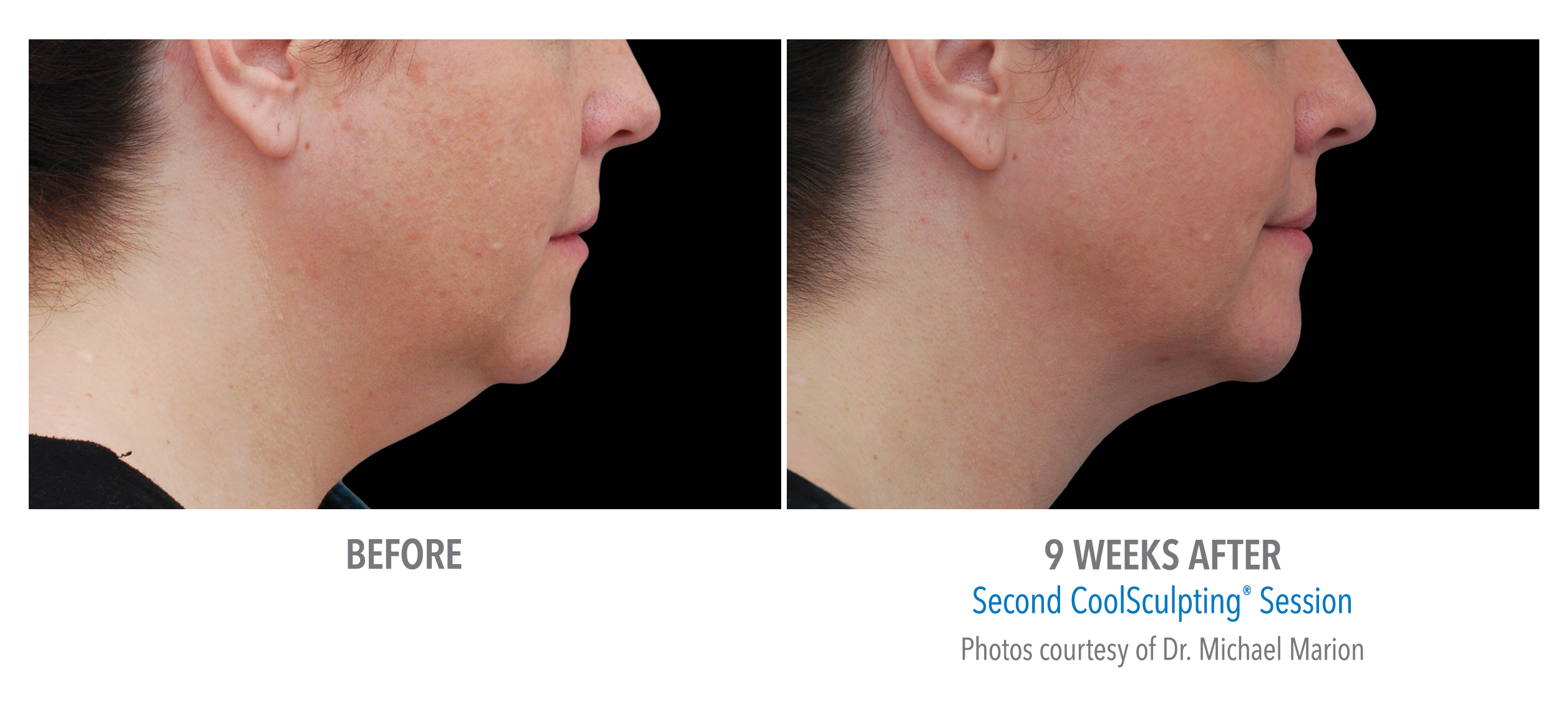 jawline definition coolsculpting before after