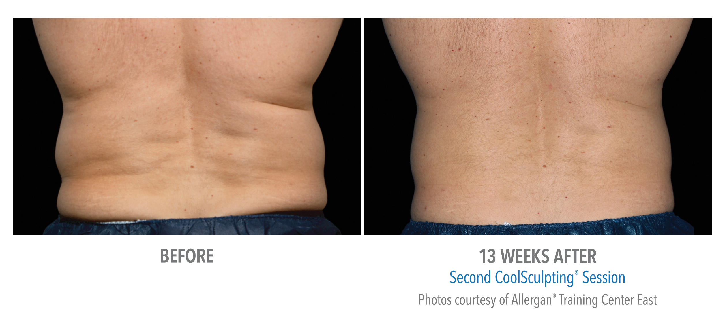 love handles before after
