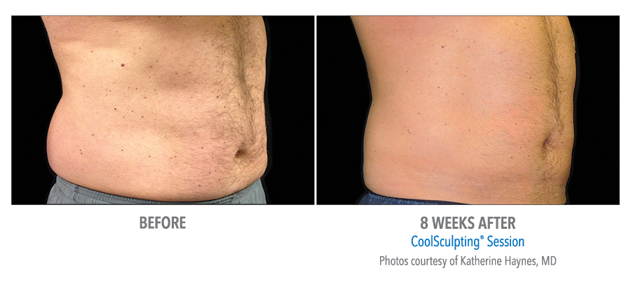 love handles before after coolsculpting